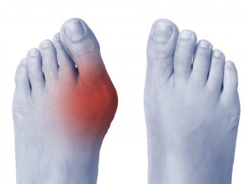 Bunion feet