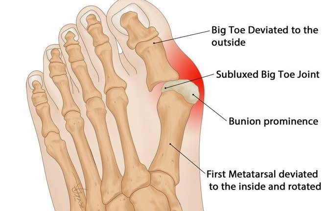 Bunion Explained