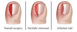 Ingrown Toenail Surgery Hobart