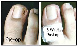 Ingrown Toenail Surgery Hobart